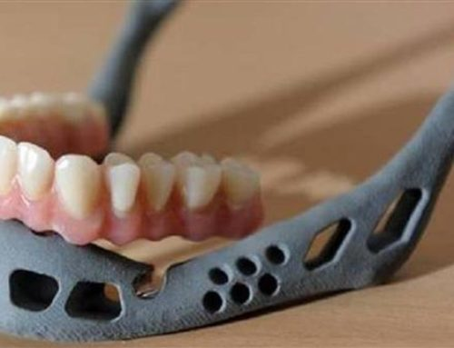 پرینت سه بعدی ایمپلنت فک و صورت