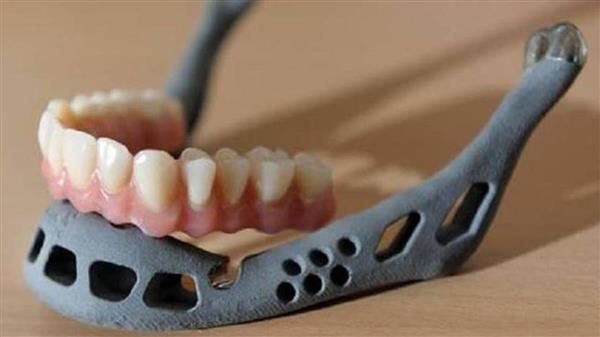 اولین پرینت سه بعدی ایمپلنت فک و صورت